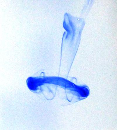 Ink droplet flow with jellyfish-like structure